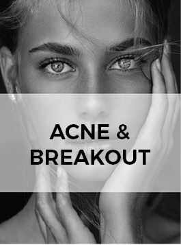 skin care for acne and breakout